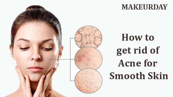 How to get rid of acne for smooth skin